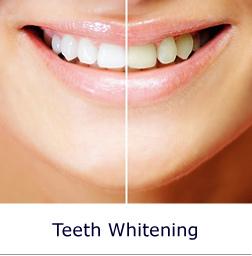 Adhesive Bridges Dentists Glasgow Nhs And Prive Dentists Teeth