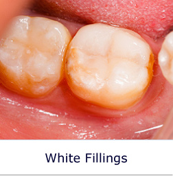 White Fillings Dentists Glasgow Nhs And Prive Dentists Teeth